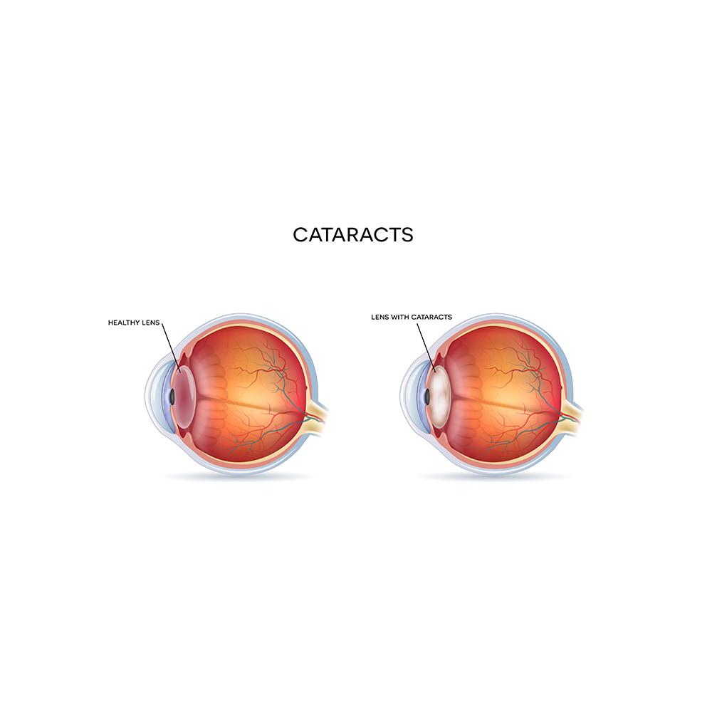 cataracts graphic