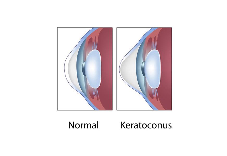 keratonocus graphic