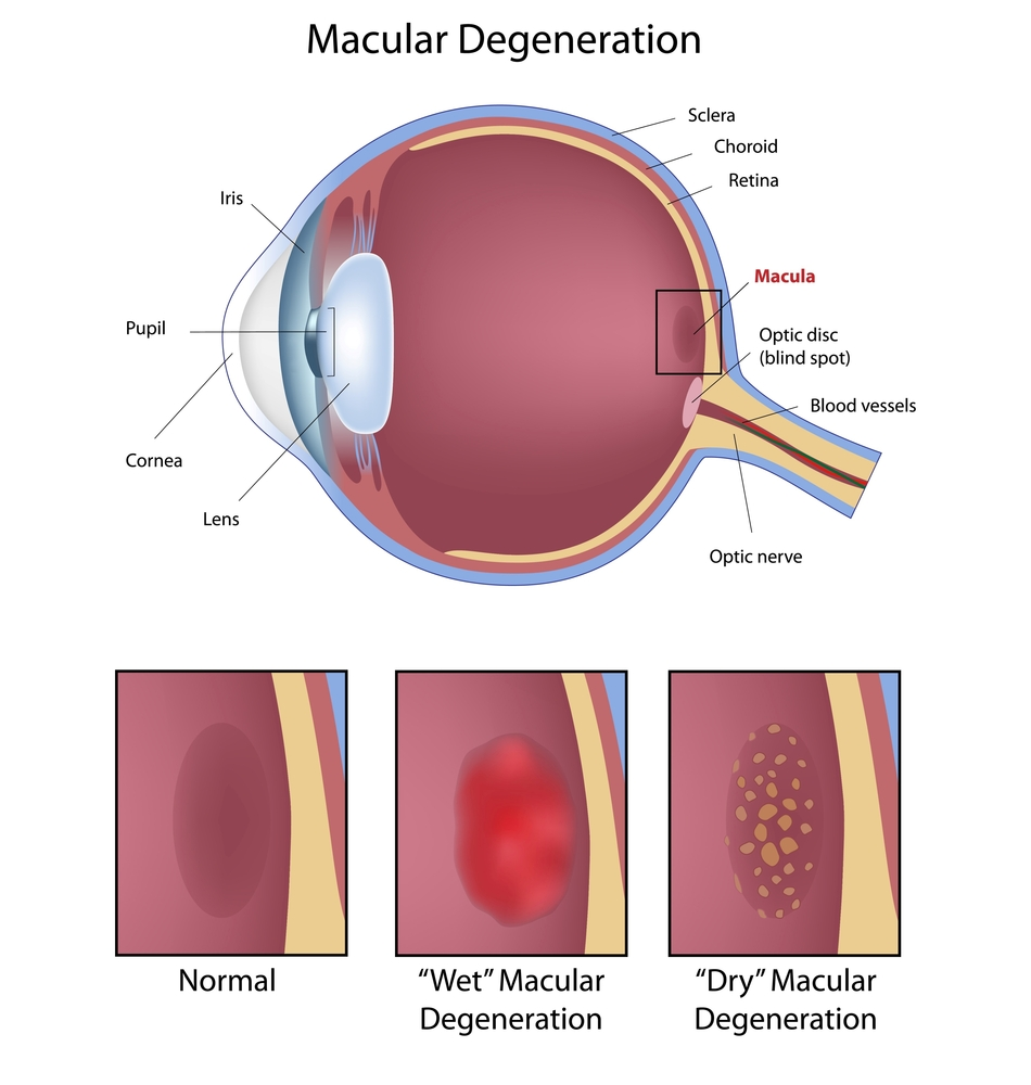 macular degeneration diagram